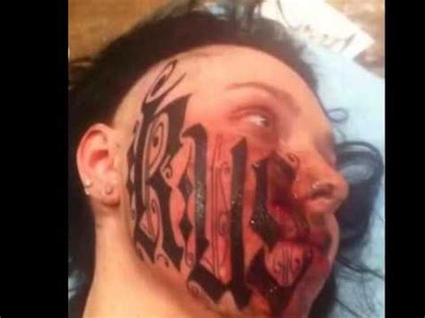 extreme tattoo removal