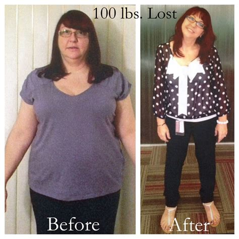weight loss 100 pounds success story weight loss 100 pound before after unhealthy