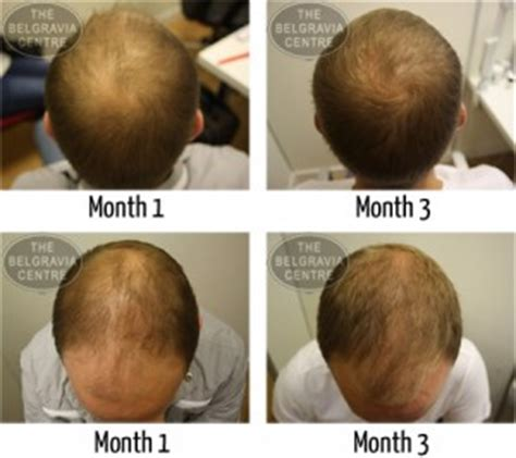 Male Hair Loss Pattern Due To Stress | could your career be hurting your hairline