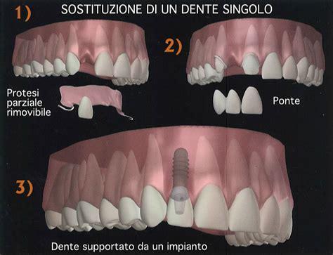 quanto costa una dentiera mobile impianto dentale tutto ci 242 che devi sapere dalla a alla z