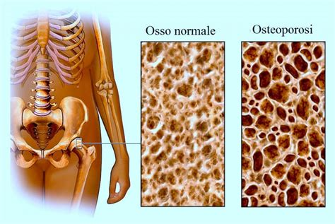 alimentazione osteoporosi dieta per l osteoporosi alimenti con vitamina d e calcio