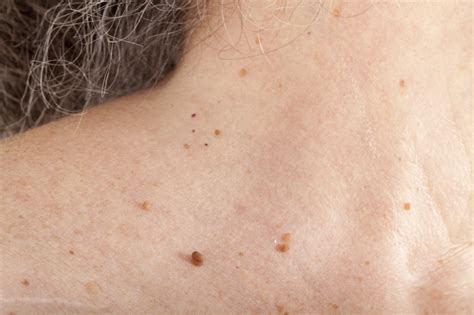skin tags how to remove skin tags naturally and what to do