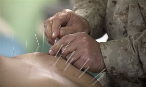 Harlem Clinic Acupuncture Detox by Fibromyalgia Could Be Eased With Acupuncture