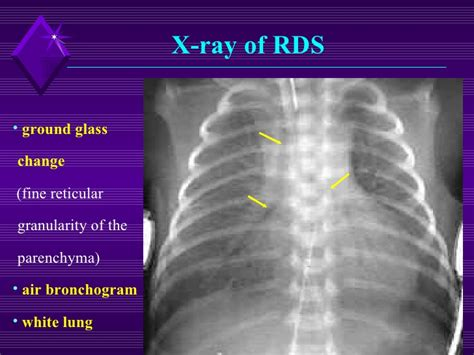 Respiratory Distress Pictures
