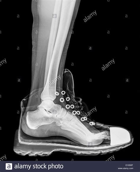 x ray boat shoes x ray of a foot and ankle in a running shoe stock photo