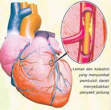 Obat Herbal Jantung Berdebar Dan Sesak Nafas obat sakit jantung rekomendasi paha ahli obat herbal