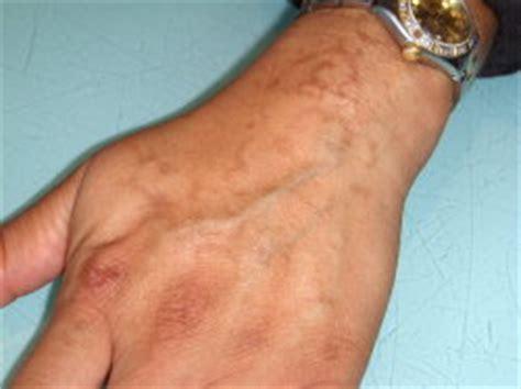 Black Henna Dangers And Other Henna Safety Black Henna Scars