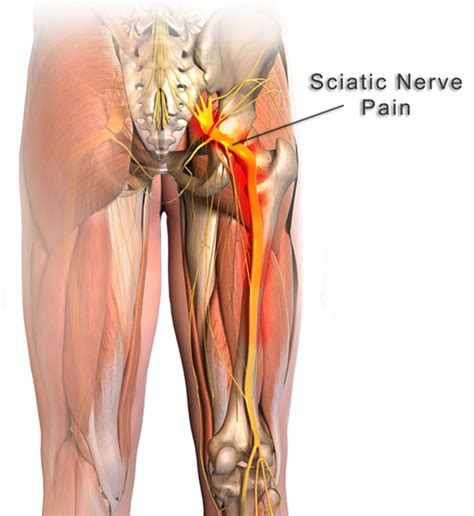 nerve pain causes nerve pain thighs sciatica piriformis syndrome