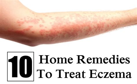 10 home remedies to treat eczema find home remedy