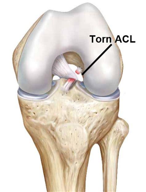 torn acl symptoms anterior cruciate ligament acl rupture work fit sport fit fit