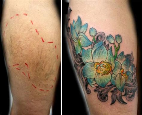 a tattoo artist is inking over the scars of victims of