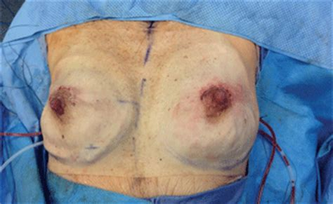 breast reconstruction following mastectomy plastic and reconstructive surgery