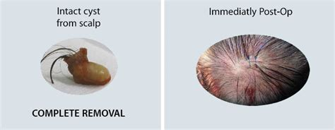 sebaceous cyst removal treatment dermatology clinic