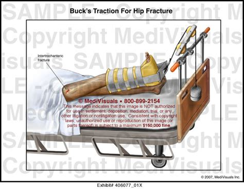 buck s traction for hip fracture illustration