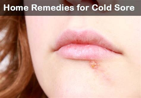18 diy home remedies for cold sore healthremediesforlife