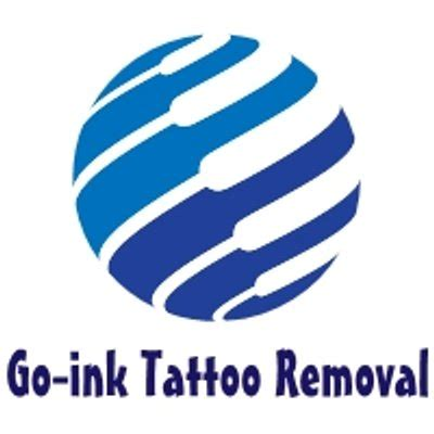 tattoo removal coventry 12 removal coventry apprenticeship big
