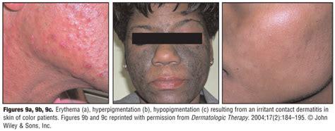 ashen color skin asteatotic dermatitis causes