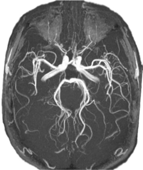 angio rmn vasi intracranici allgemeine hirnaneurysmen cl 237 nica neuros