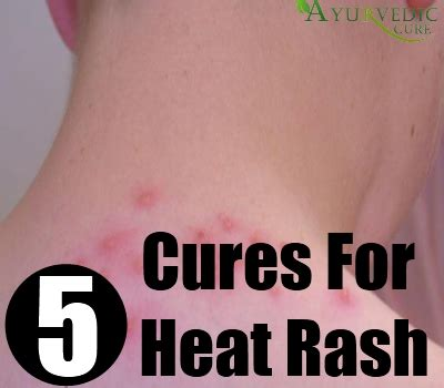 best and effective ways to cure heat rash naturally usa