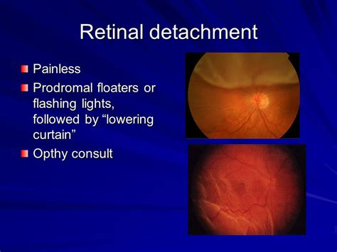 retinal detachment curtain ophthalmologic emergencies ppt download