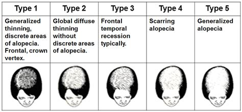 Types Of Hair Loss In Females by Hair Loss West La Hair Restoration