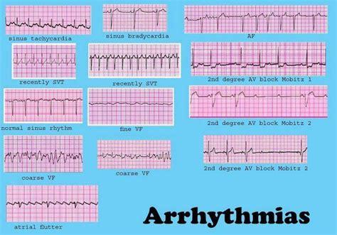 ecg pattern analysis for emotion detection dysrhythmia cheat sheet cardiac dysrrhythmia aka