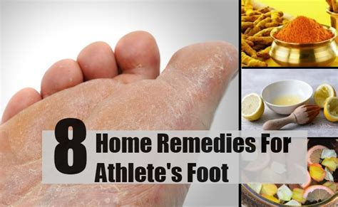 8 home remedies for athlete s foot treatments