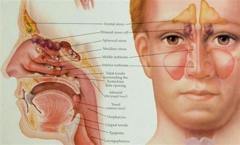 mal di testa da catarro dolore e patologie