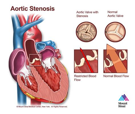 aortic stenosis diagram aortic stenosis the mount sinai hospital nursing peds