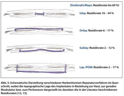 innere hernie hernien operation welche methode f 252 r welchen patienten