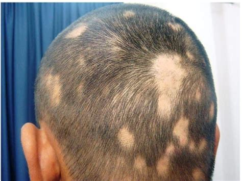 pattern baldness image new arthritis pill cures male pattern baldness