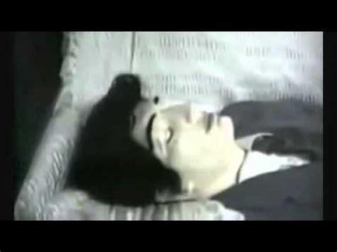 how did die did elvis really die
