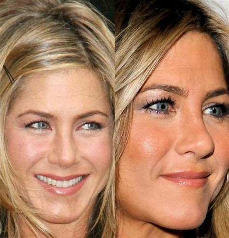 Aniston Second Nose For More Baby by Aniston Admits Plastic Surgery Or Bad Nose