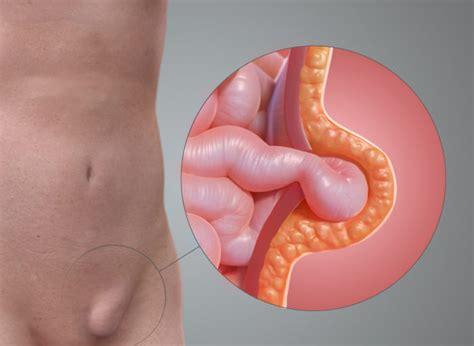 ernia addominale interna ernia inguinale sintomi cause e rimedi tuttogreen