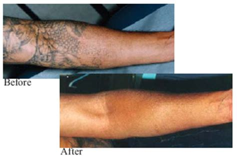 orange county tattoo removal laser removal in orange county southern california