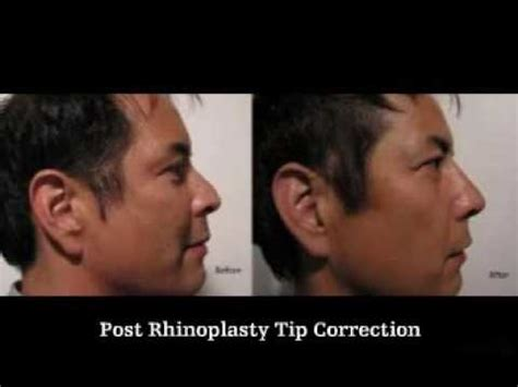 dr alexander rivkin archives page 4 of 4 arlene howard pr asian non surgical rhinoplasty la youtube