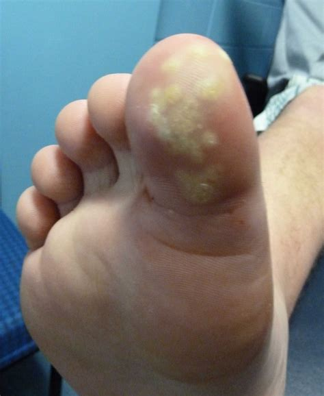 Cause Of Planters Wart by For Plantar Warts Warts Au