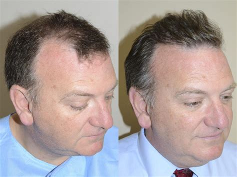 hair plugs for men hair transplants for men photos miami fl patient 40182