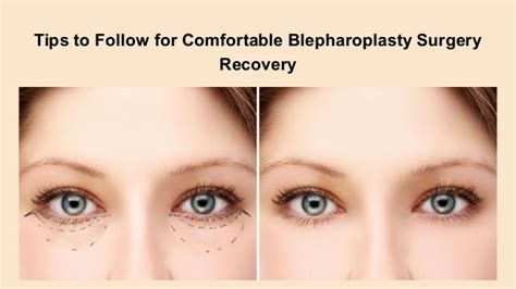 Tips For A Successful Surgical Recovery by Tips To Follow For Comfortable Blepharoplasty Surgery Recovery