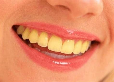 white teeth important quora