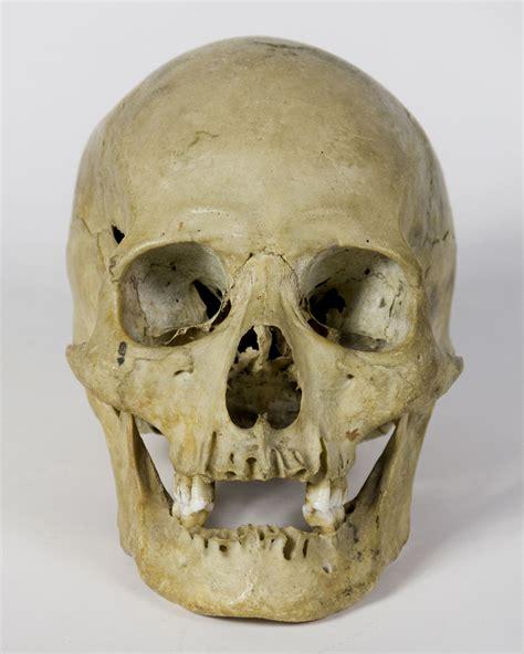 taxidermy antique human skull