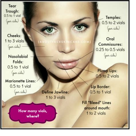 Top 3 Restylane Questions Asked By My Patients by Juvederm Philadelphia About Skincare