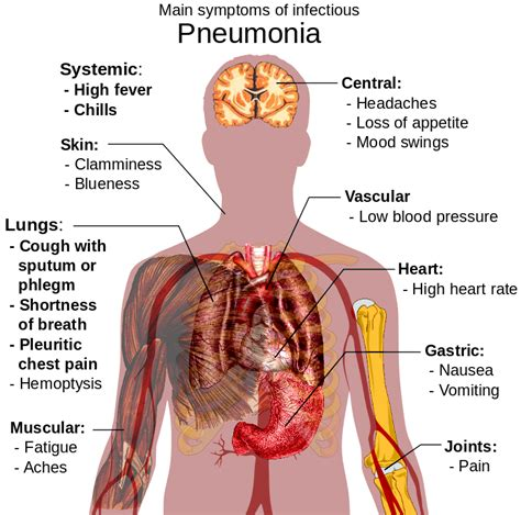 Did Pneumonia Kill Smith by 21 Best Home Remedies For Pneumonia That Actually Work