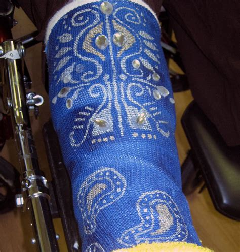 Decorate Your Cast by Sorta Fabulous A Leg Decorate The Cast