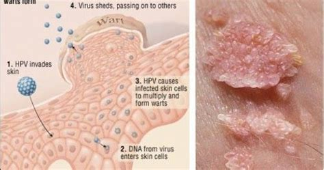 Obat Kutil Dengan Cuka 23 best hpv cervical cancer awareness images on