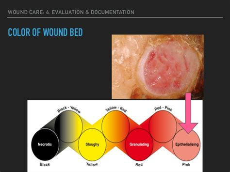 wound bed description wound care