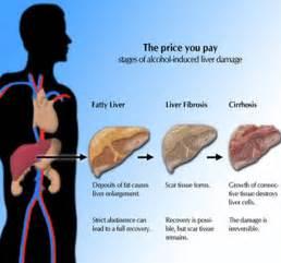 Alcoholic hepatitis liver diseases epharmapedia