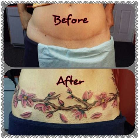 c section cover up tattoos cherries tummy tucks and tummy tuck scars on pinterest
