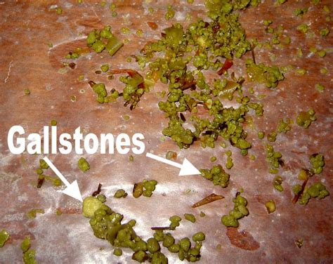 Passing A Gallstone In Stool how to get rid of gallstone at home naturally