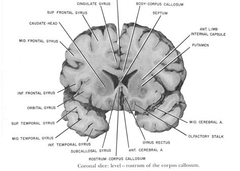 coronal section of skull coronal section of brain quotes